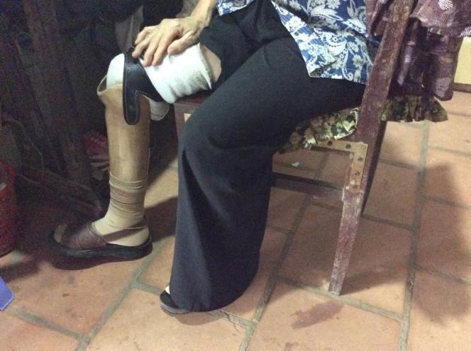 Bà Tròn kể: Lần đầu tiên thay chân bị đau, Larry Burrows đã đưa bà lên TP thay lại cái chân mới. Từ đó tới giờ, đây là cái chân giả duy nhất bà sử dụng và vẫn dùng ổn. Ảnh: Khải Đơn